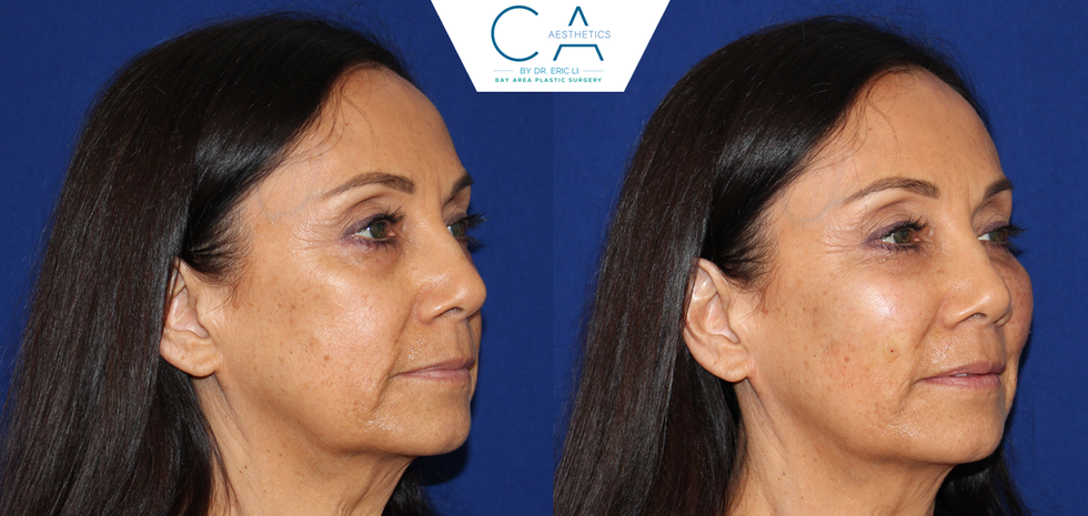 Sculptra Facial Augmentation