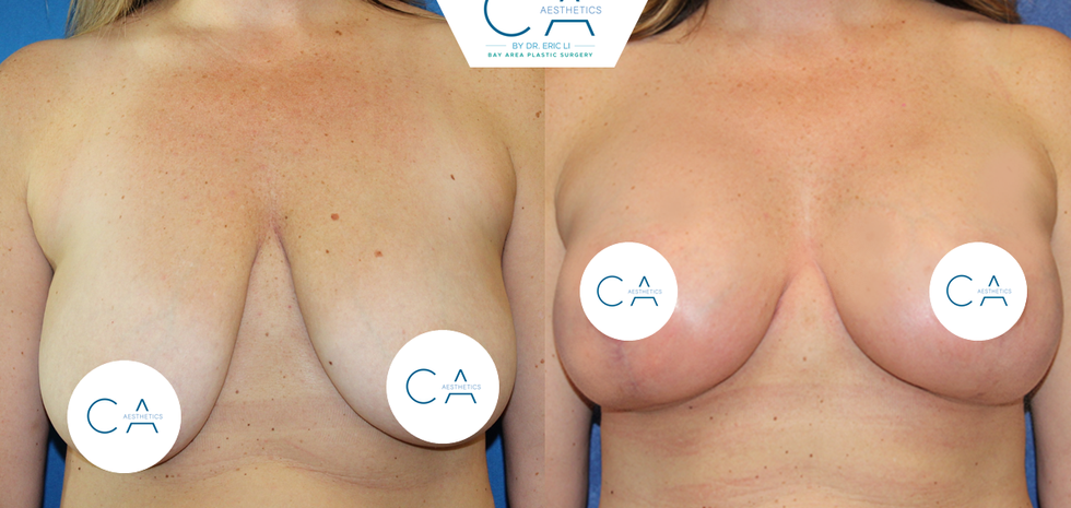 anchor breast lift, breast augmentation, mommy makeover
