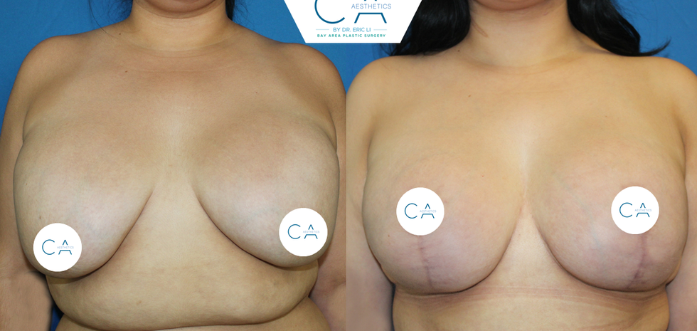 anchor breast lift, exchange implants, revision breast surgery