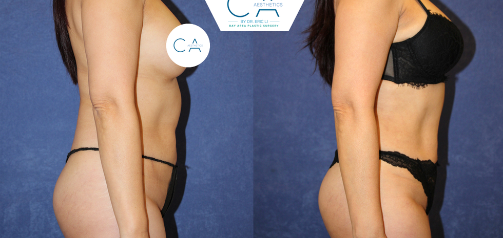 3D liposuction, liposuction abdomen and bilateral flanks