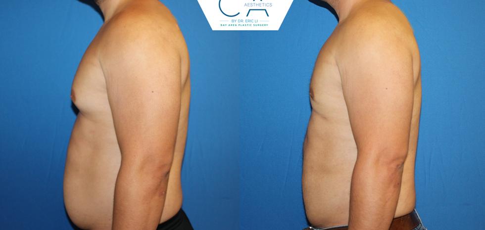 3D liposuction, liposuction abdomen and bilateral flanks, gynecomastia surgery, male breast reduction, male liposuction