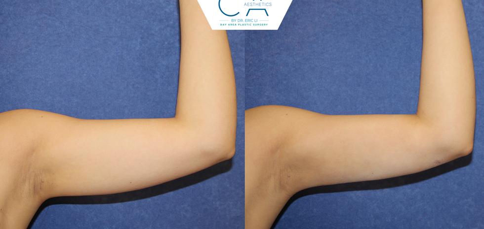 3D liposuction, arm liposuction