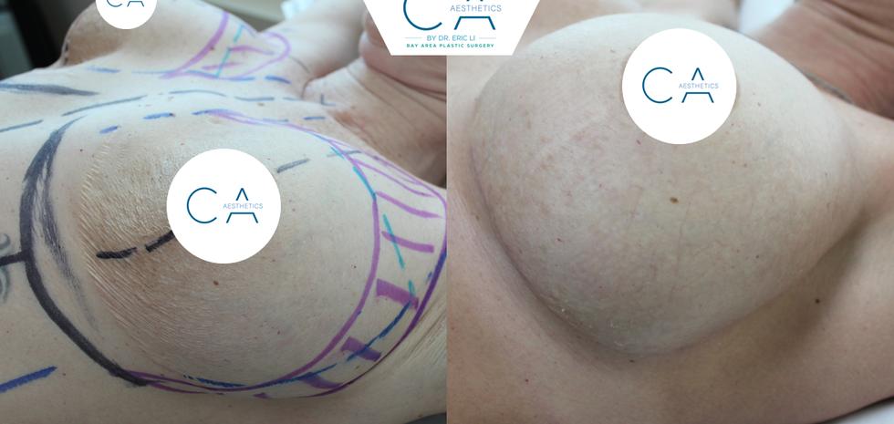 breast revision, revision mastopexy, implant exchange, pocket adjustments