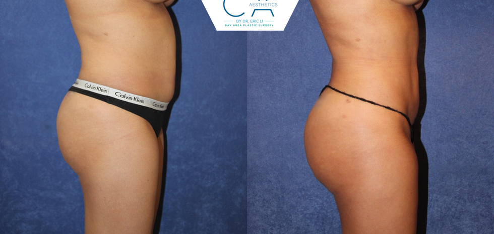 3D liposuction, liposuction abdomen and bilateral flanks, buttock augmentation, buttock and hip fat grafting, buttock and hip fat transfer