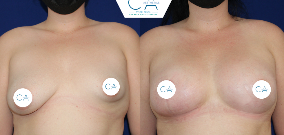 tuberous breast, breast augmentation, anchor breast lift, breast asymmetry