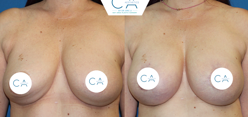 peri-areolar breast lift, implant exchange, revision breast surgery, mommy makeover