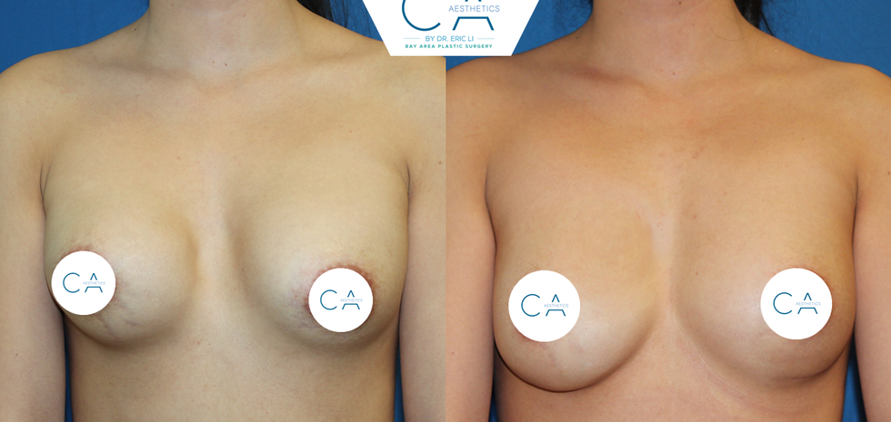 breast revision, capsular contracture, fat grafting