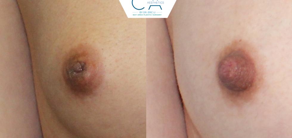Inverted nipple correction, nipple inversion