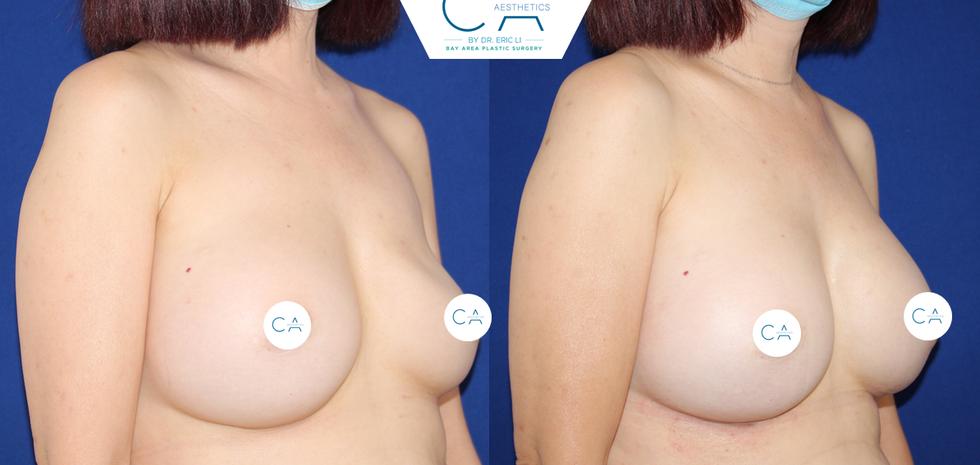 Breast Revision 2 Oblique.png