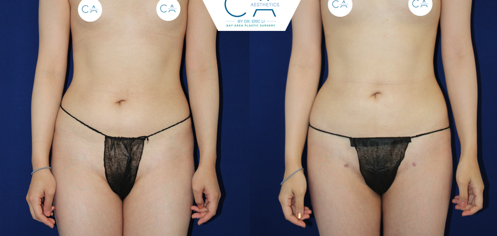 liposuction medial thighs