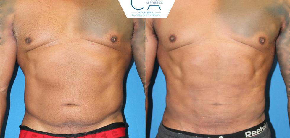 Liposuction abdomen and bilateral flanks, male liposuction
