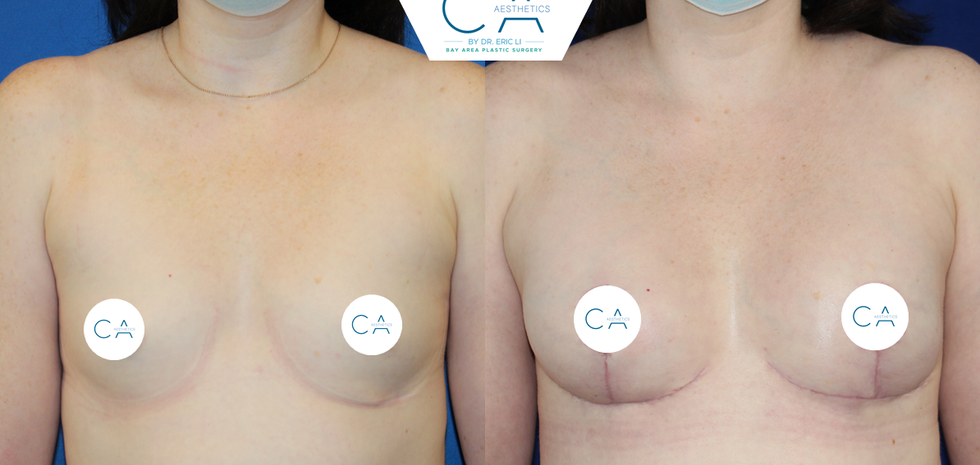 Breast reconstruction after compromise of the mastectomy flaps