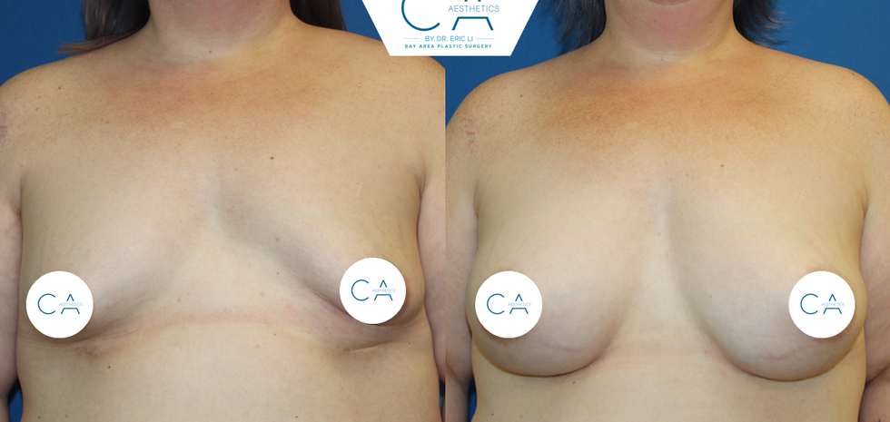 breast revision, revision mastopexy, implant exchange, pocket adjustments, correction of tuberous breast