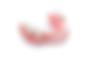 acrylic_partial_denture.png