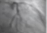 angiogram pic.png
