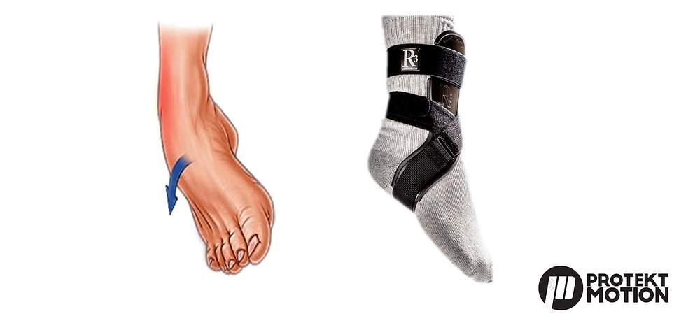 Illustration of a lateral ankle roll where the top of the foot is rolling unnaturally towards the ground, image of R3 brace shows how the function of the brace helps STOP the lateral roll motion in the ankle