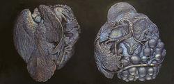Fox & Crow Aesop Medal