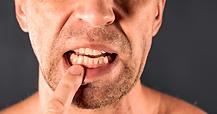 Gum-Disease.png