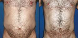 Liposuction male abdomen
