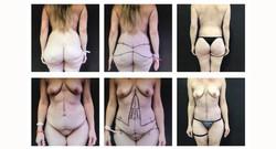 Body-ContourBariatric#2