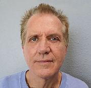 Male facelift patient testimonial