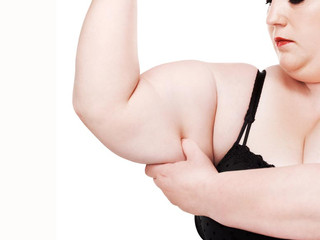 Body Contouring helps patients achieve long-term weight control