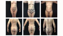 Body-ContourBariatric#5