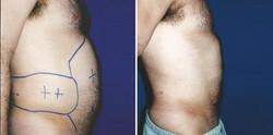 Liposuction#2