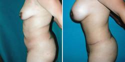 Breast-Lift-Implant-TummyTuck#1
