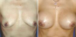 Breast-Lift-#3