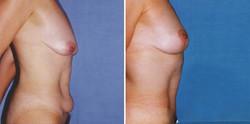 Breast-Lift-#2