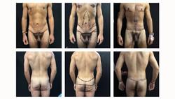 Body-ContourBariatric#4