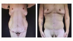 Body-ContourBariatric#3