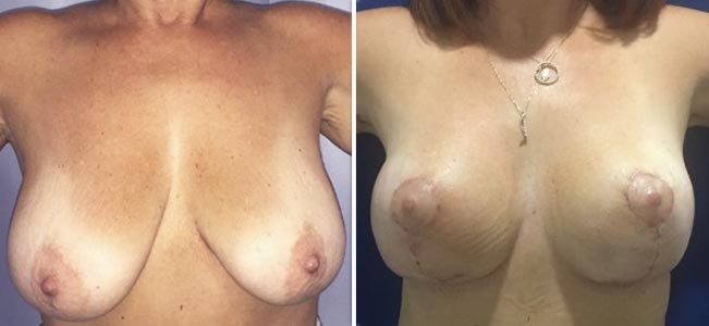 Breast-Lift-#1