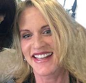 Female facelift patient testimonial