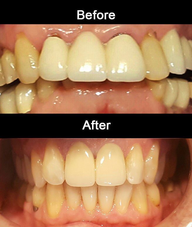 E-Max-Crowns-&-Crown-Lenthening