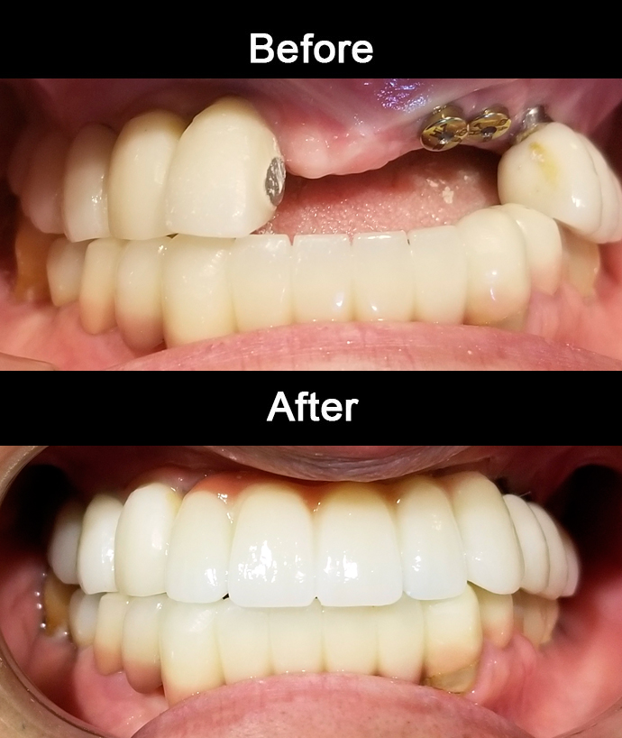 Zirconia Implant Bridge