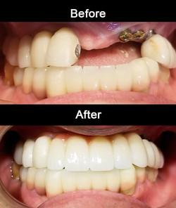 Zirconia Implant Bridge