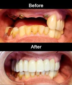 Anterior Zirconia Implants