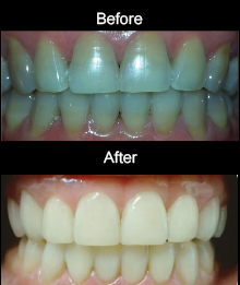 Cosmetic Resin Veneers