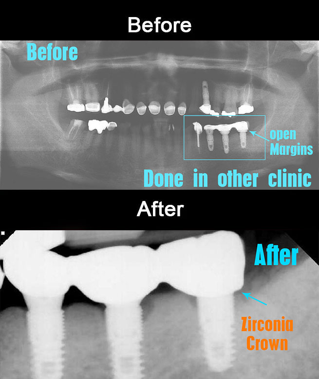 Implant zirconia crowns re-do