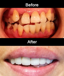 Cosmetic Crowns with Bondings