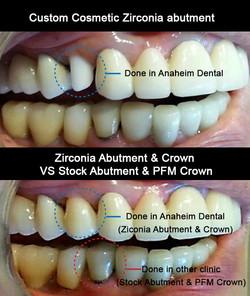 Custom Zirconia Implant