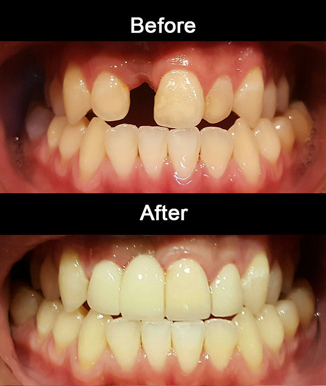 Layerd-Zirconia-Bridge-&-Crowns1