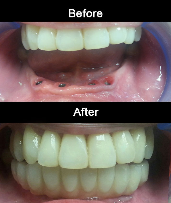 Implant-Hybrid-Denture