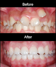 Orthodontic Tx