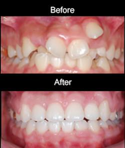 Orthodontic Tx