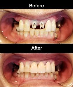 Zirconia Abutment Implants