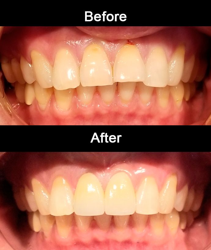 Anterior Cosmetic Crowns