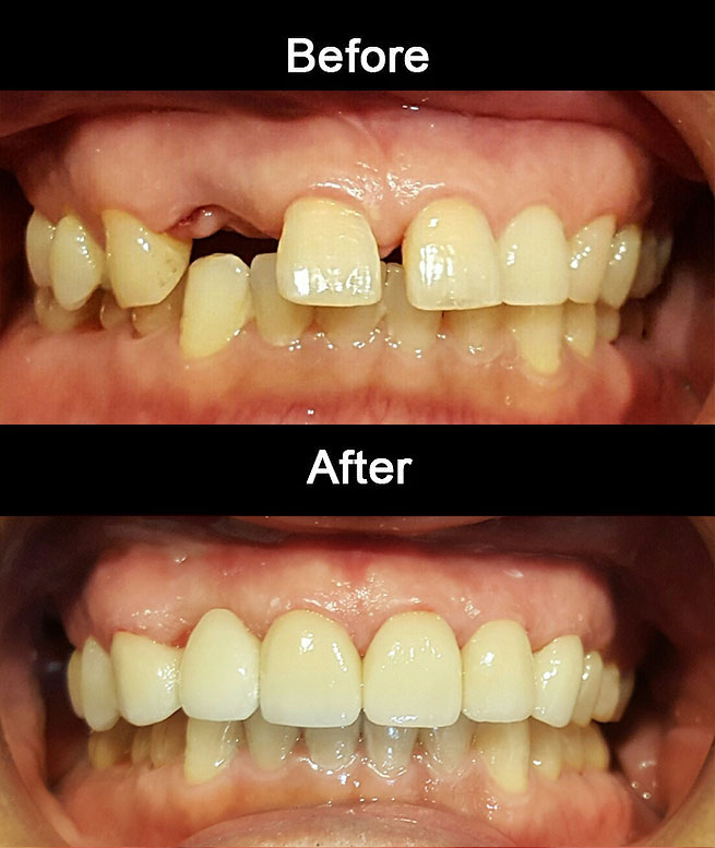 Layerd Zirconia Bridge & Crowns